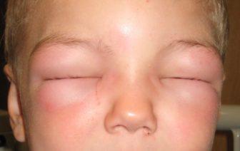 allergiakezeles